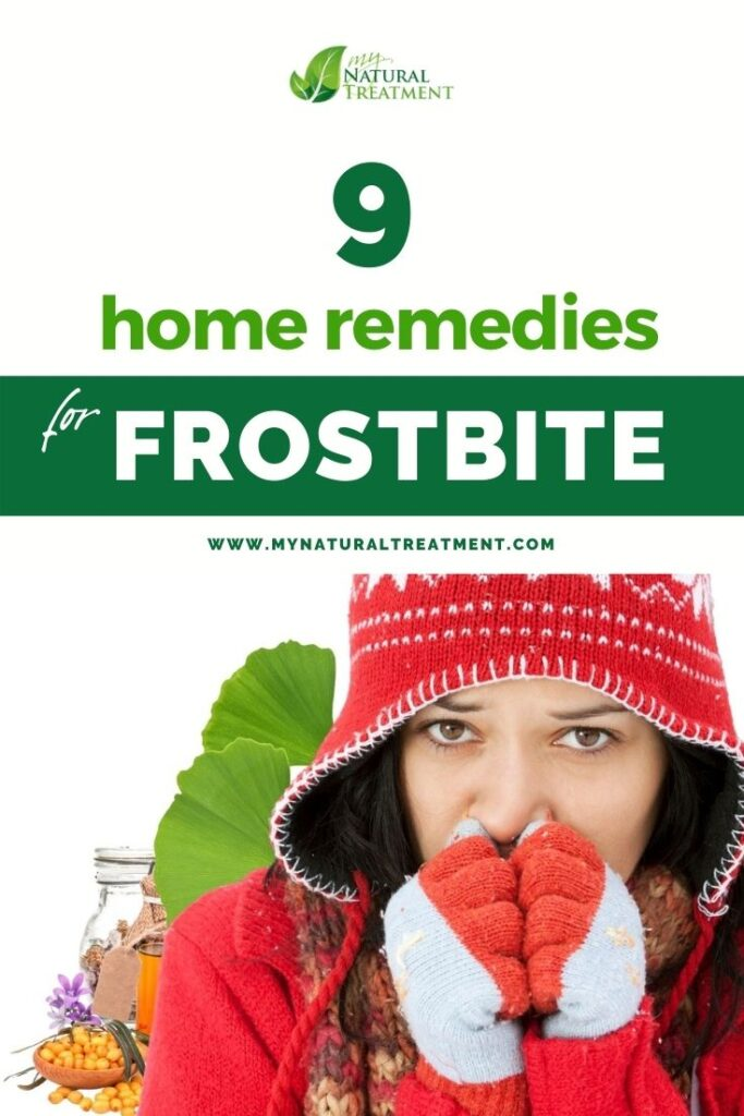 9 Home Remedies for Frostbite - MyNaturalTreatment.com