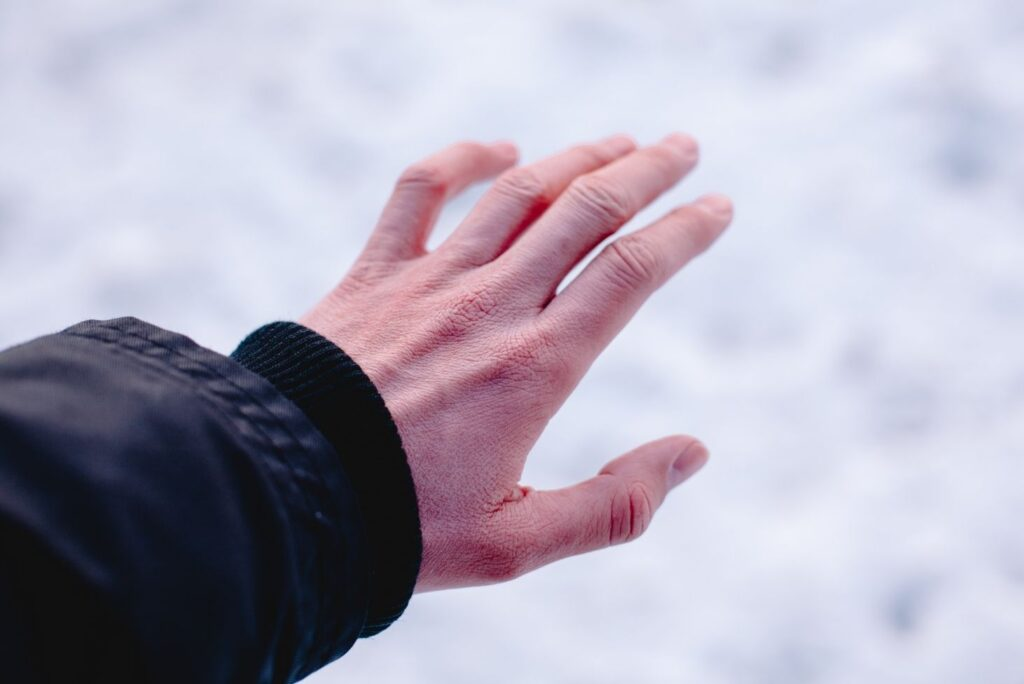 9 Powerful Home Remedies for Frostbite & Natural Prevention - Frostbite