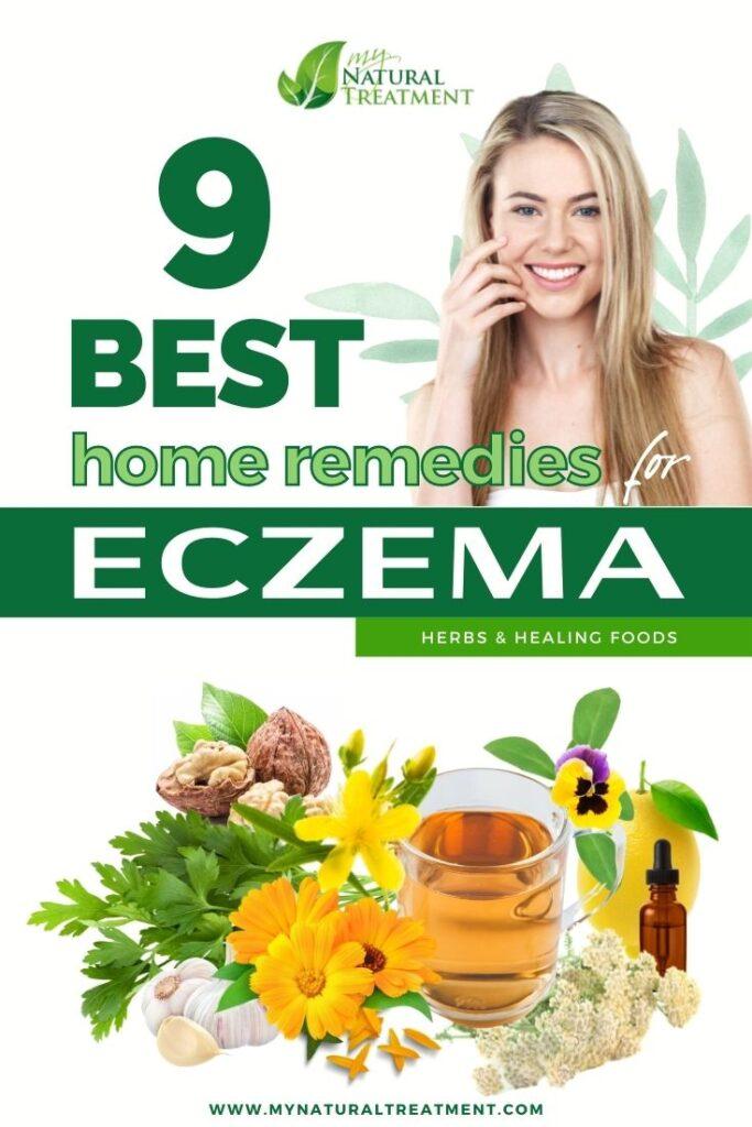 9 Best Home Remedies for Eczema - MyNaturalTreatment.com