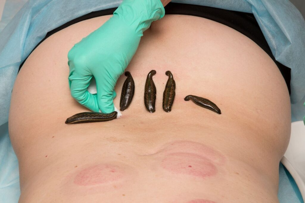 Medicinal Leech Therapy - Hirudotherapy - MYN