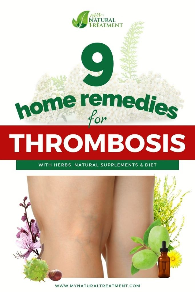 9 Home Remedies for Thrombosis - MyNaturalTreatment.com